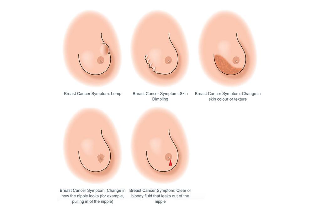 Breast Cancer Symptoms Femalesurgeonuae