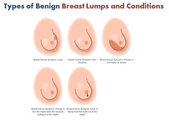 Types Of Benign Breast Lumps And Conditions Femalesurgeonuae